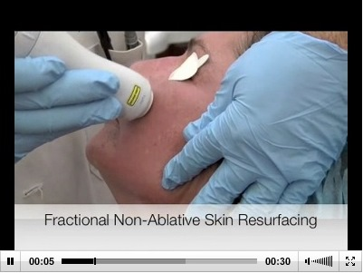 non-ablative fractional laser treatment on wrinkles