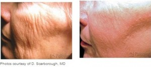 wrinkle laser treatment